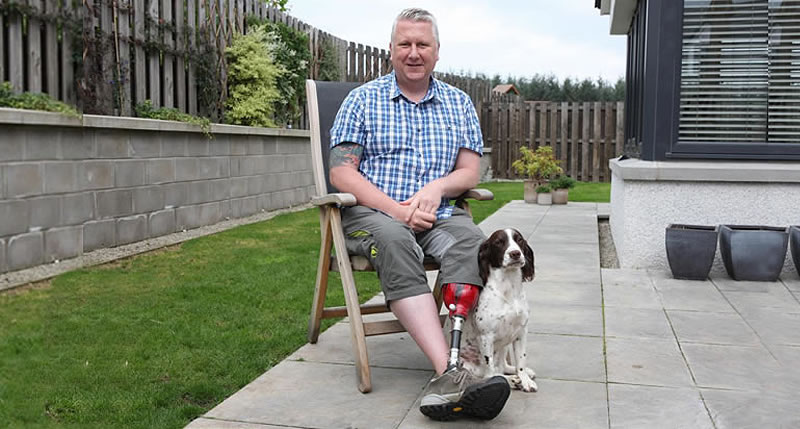 man with prosthetic foot and his dog